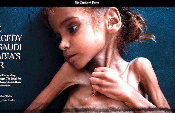 Come uccide la guerra in Yemen