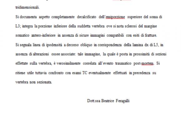 Stefano Cucchi: in aula la verità del medico che esaminò una parte incompleta della schiena