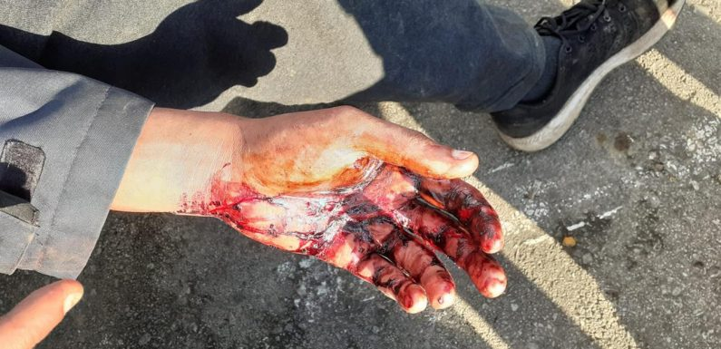 Moratti (Amnesty): «Quelle delle polizia croata non sono violenze ma torture»